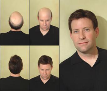 Millennium Hair Replacement 1