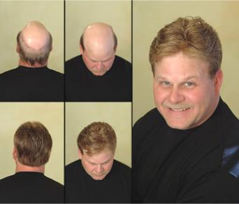 Millennium Hair Replacement2